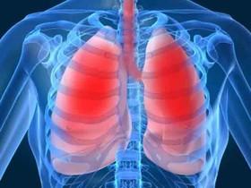 بیش از ۳۲۰ میلیون نفر در جهان مبتلا به آسم هستند