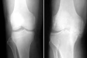 کاهش فاصله مفصلی؛ نخستین نشانه ساییدگی زانو