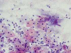 شایع ترین عفونت زنان در سنین باروری است
