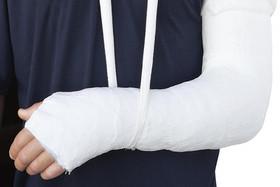 شکستگی سطح مفصلی؛ خطرناکترین نوع شکستگی ها/ شکستگی مارپیچی بر اثر چرخش اندام ایجاد می شود