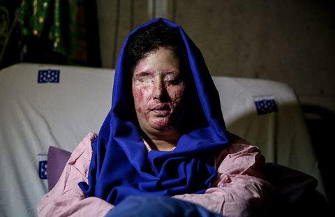 دخترم نور را میبیند/هنوز پولی از ایران نرسیده است