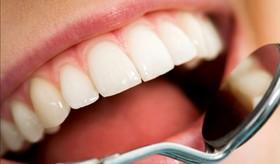 بیش از ۹۰ درصد مردم دچار پوسیدگی دندان هستند