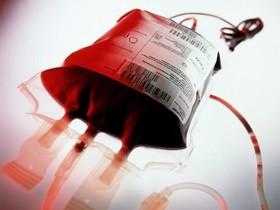 بین حجامت و اهدای خون تفاوت معناداری کشف نشده است