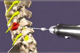 اوزون تراپی؛ درمانی برای بیماریهای عضلانی