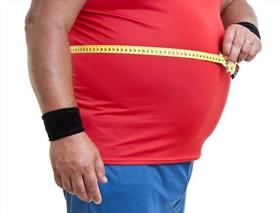 """بیمه با چه شرطی هزینه جراحی """"چاقی"""" را میدهد"""