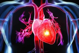 ساخت استنتهای زیست تخریبپذیر برای رگهای قلبی