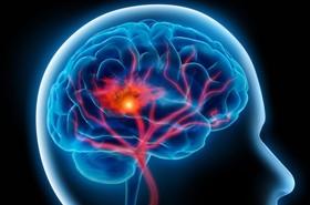 سکته مغزی قابل درمان است، اگر وقت را از دست ندهیم