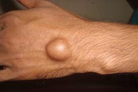 """""""گانگلیون""""؛ شایع ترین توده مچ دست/ بیماری بیشتر در میان زنان ۲۰ تا ۳۰ سال دیده میشود"""
