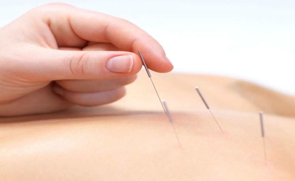تاثیر طب سوزنی بر زیبایی پوست/ قند خون را کنترل کنیم
