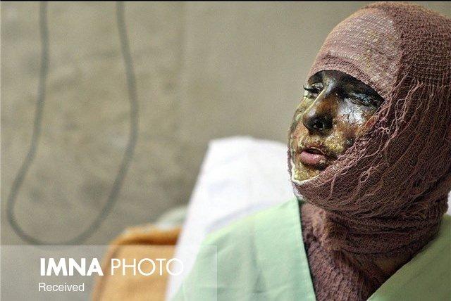 جزئیات اسیدپاشی روی مادر و دختر سقزی