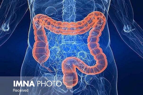 علائم سندروم روده تحریک پذیر چیست؟