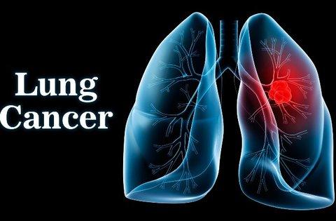 چگونه میتوان از  سرطان ریه پیشگیری کرد؟