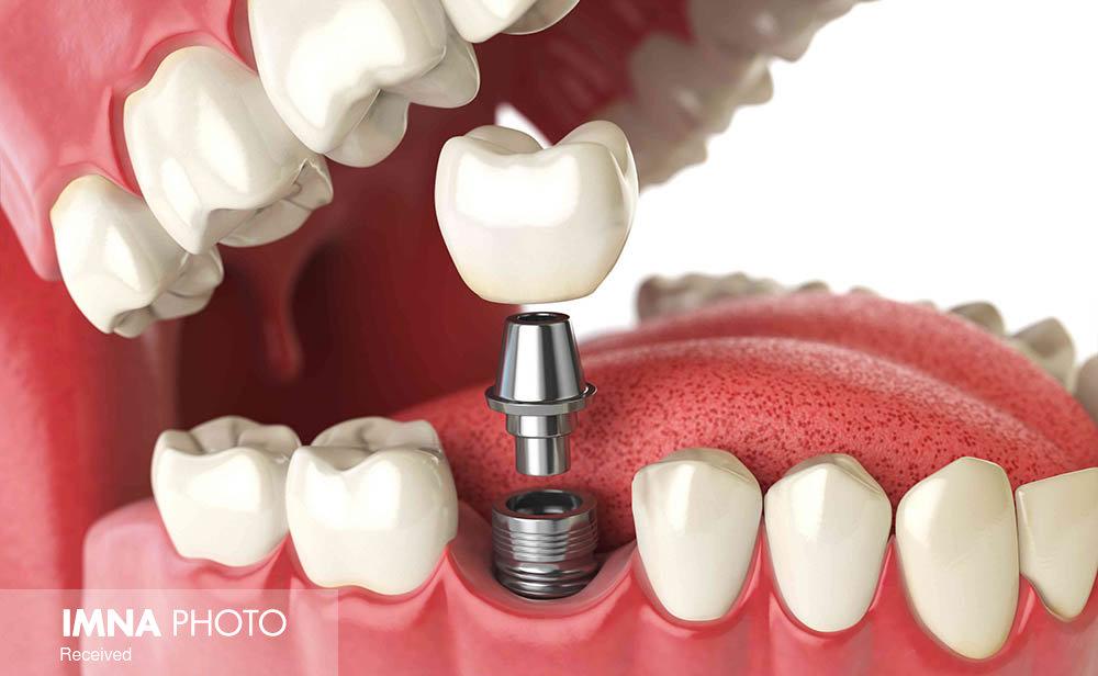 ایمپلنت؛ روشی نوین برای جایگزینی دندان