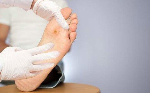 عوارض درمان نکردن زخم پای دیابتی چیست؟