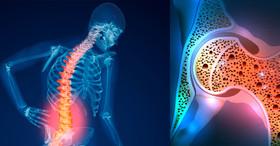 مبتلایان به پوکی استخوان، کمبود آهن را جدی بگیرند