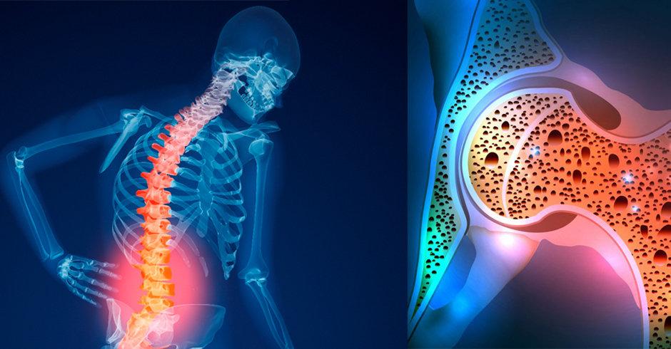نشانههای پوکی زودرس استخوان/ بایدها و نبایدهای غذایی مبتلایان به هپاتیت C