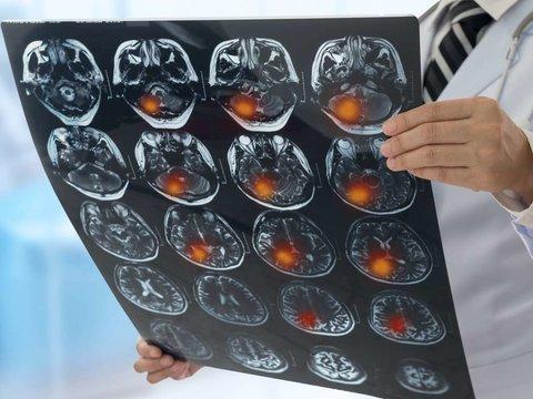 فشار خون؛ زنگ خطر سکته مغزی