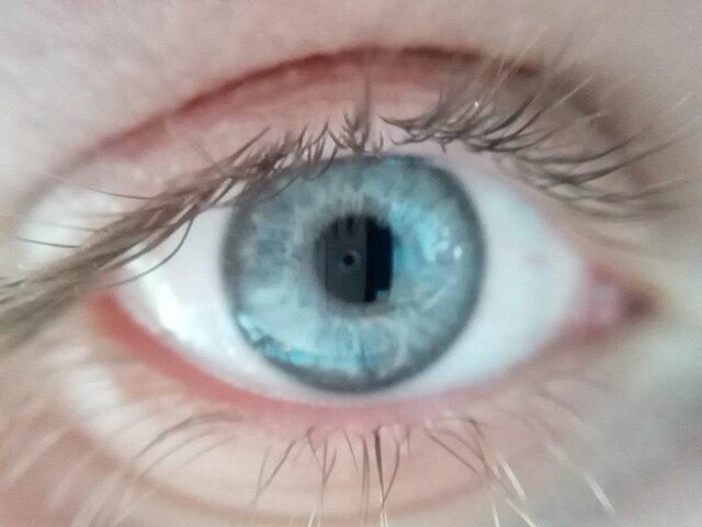 خطر عفونت چشم هنگام استفاده از لنزهای اجارهای