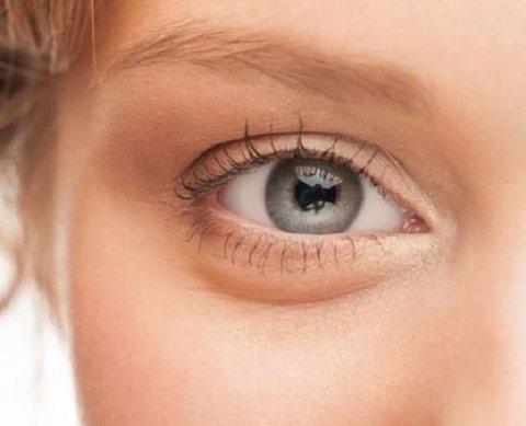 روش درمان تیرگی دور چشم چیست؟