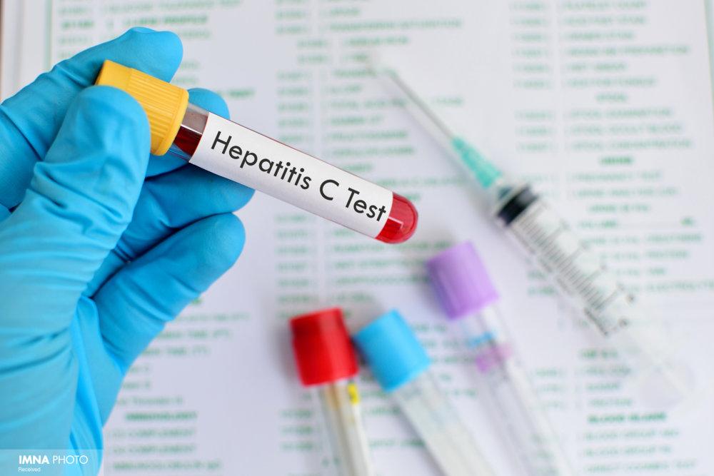 ۴۷ نفر در کاشان مبتلا به هپاتیت هستند
