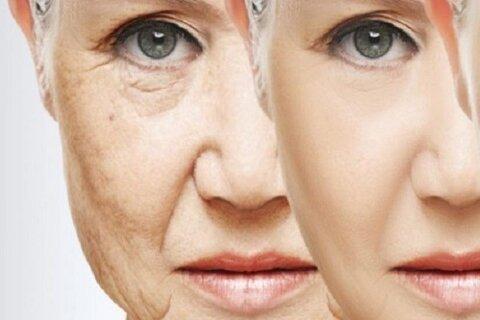 """پنج روش طبیعی کاهش چین و چروک پوست/ بیماری """"کلستاز"""" در زنان"""