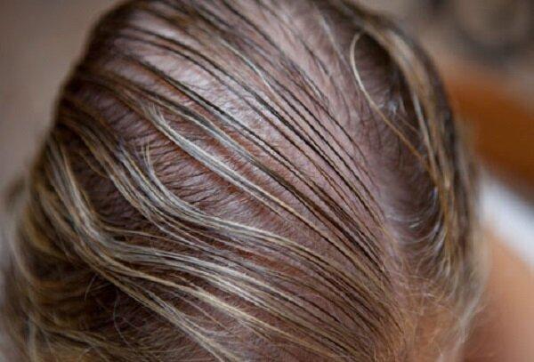 نقش کمبود ویتامین ها در ریزش مو