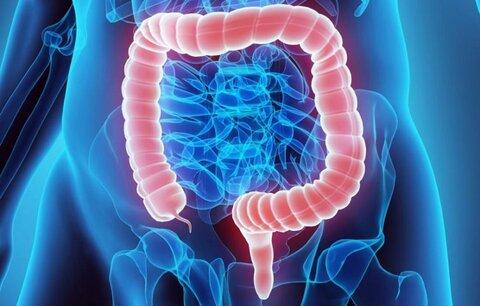 داروی فشارخون خطر سرطان روده را کاهش میدهد