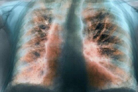 کشف روش جدید برای درمان بیماریهای مزمن ریه