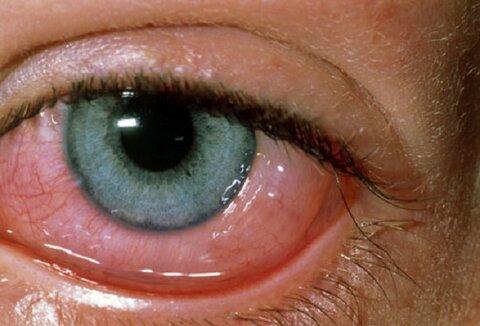 آلرژی چشم و روشهای درمان آن