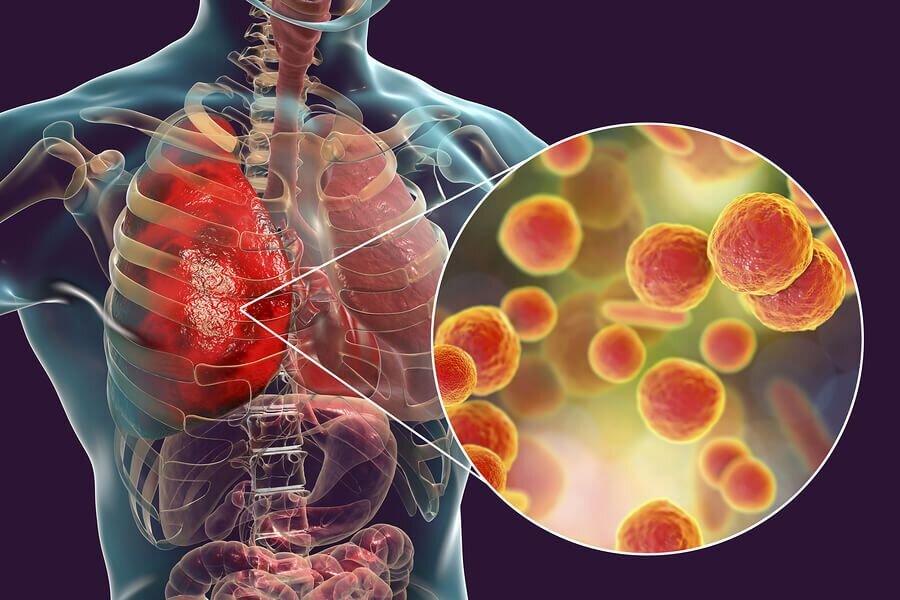علائم بارز بیماریهای حاد تنفسی را بشناسید