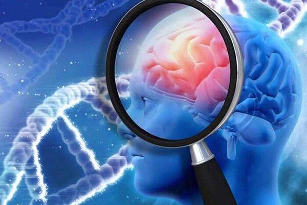 ماده موثره داروهای پارکینسون و آلزایمر در کشور تولید شد