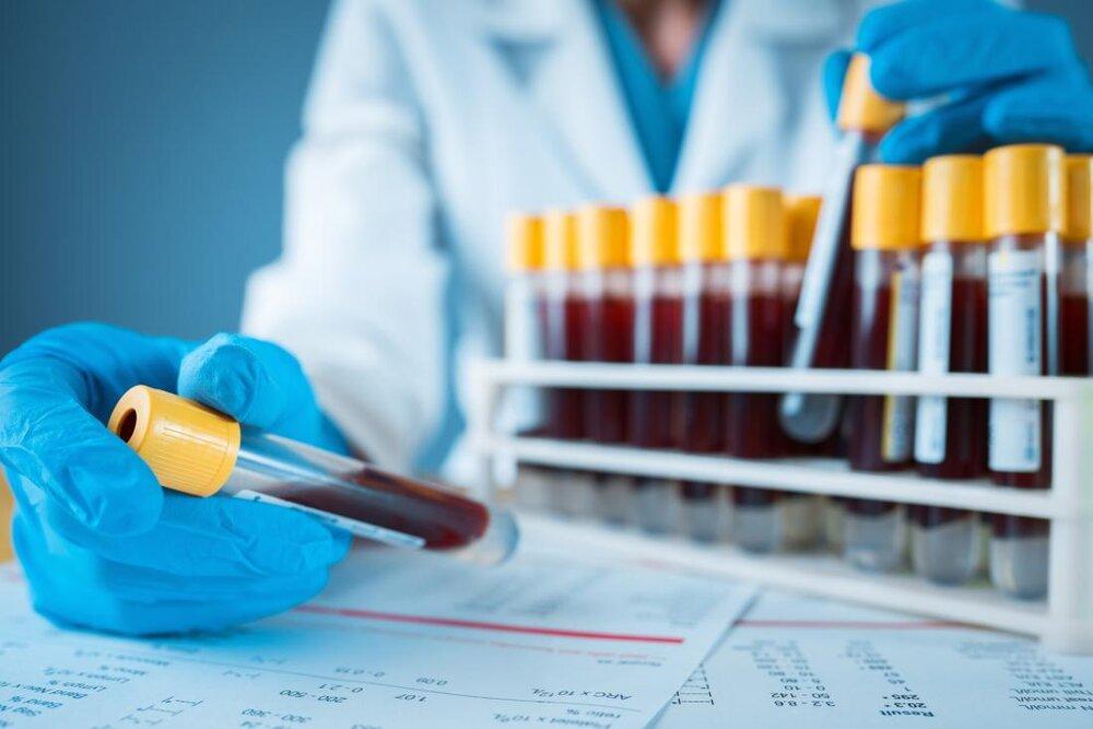 تشخیص سرطان مغز  با آزمایش خون جدید