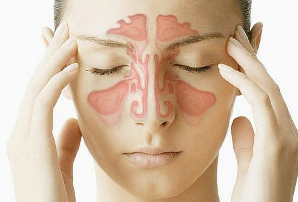 آشنایی با سردردهای سینوسی و علائم آن
