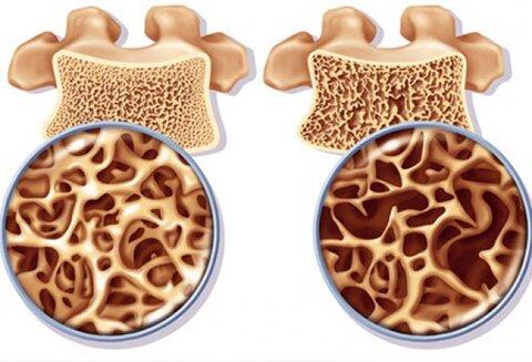 با عوامل تشدید کننده پوکی استخوان آشنا شوید