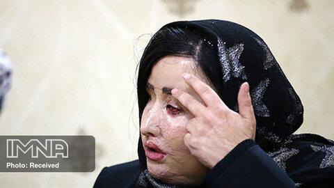 حضور یکی از قربانیان اسیدپاشی در شورای شهر اصفهان