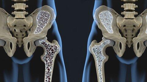 راهکارهای موثر برای درمان کاهش تراکم استخوانها