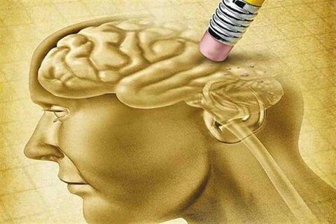 پیش بینی آلزایمر به شیوه جدید