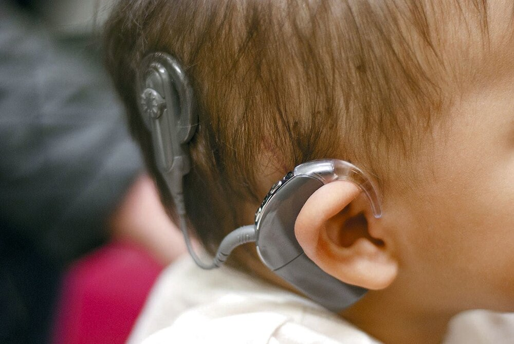 هیچ کودکی پشت نوبت دریافت کمک هزینه کاشت حلزون شنوایی نیست