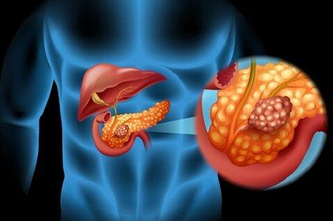 ممکن است افراد پس از کرونا به دیابت مبتلا شوند؟