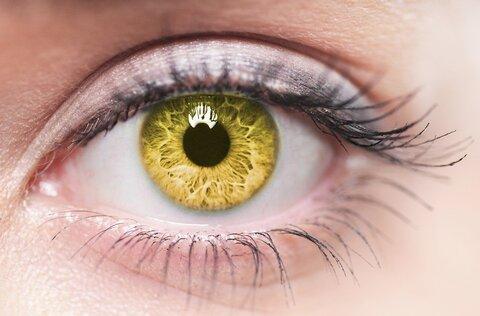چرا چشمها زرد میشود؟