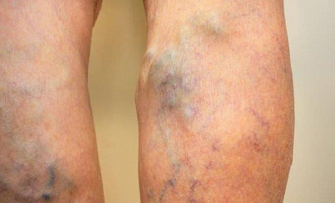 تشخیص بهتر لخته خون با یک روش جدید تصویربرداری