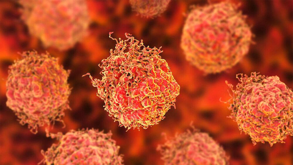 تومورهای عجیب در بیماری نوروفیبروماتوز!