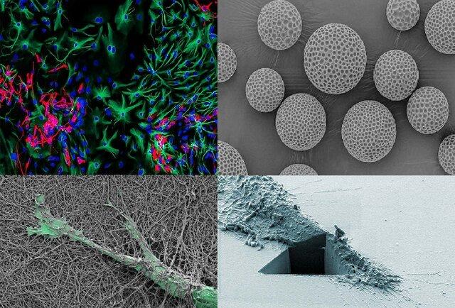 سلولهای سرطانی، برنده جایزه عکاسی شدند!