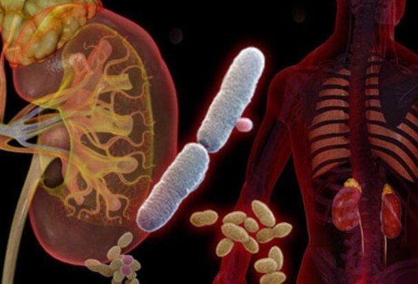 عفونت مجاری ادراری چیست و چگونه درمان میشود؟
