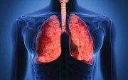 کدام مواد غذایی ریهها را تقویت میکند؟