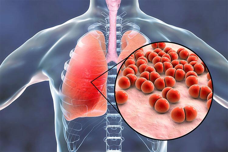 بیماری برونشیت چیست و چگونه درمان می شود؟