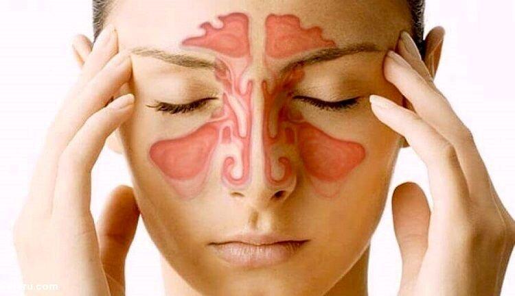 سینوزیت و راه های درمان آن