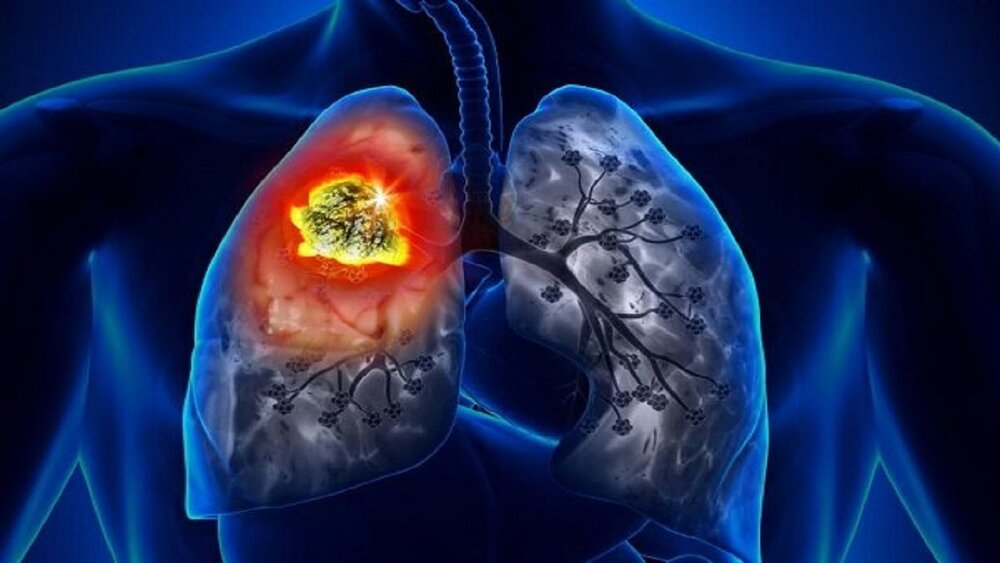 علت خونریزی دستگاه تنفسی چیست؟