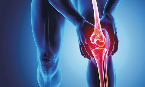 چند عادت سالم برای بهبود التهاب مفاصل