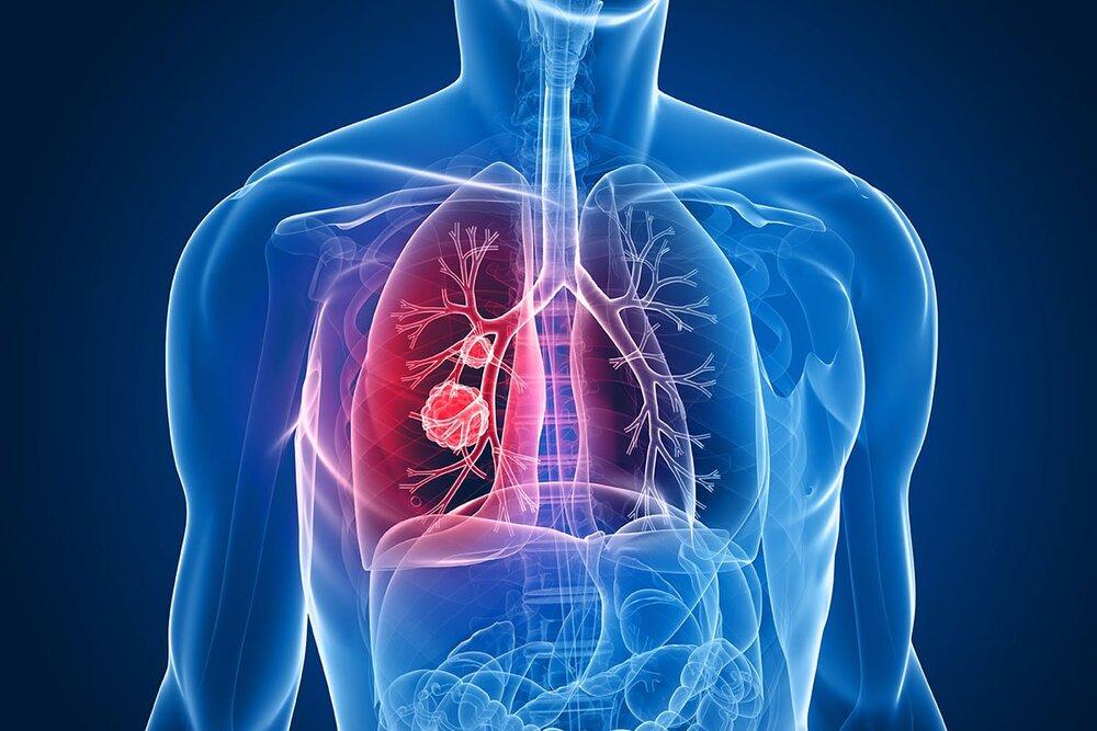 تأیید ارتباط نارساییِ تنفسی ناشی از کرونا با گروه خونی